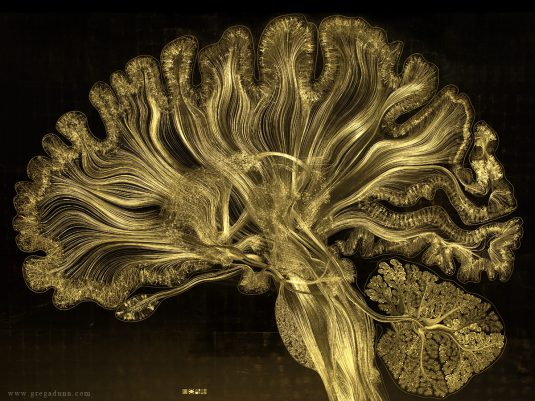 gregadunn gold brain