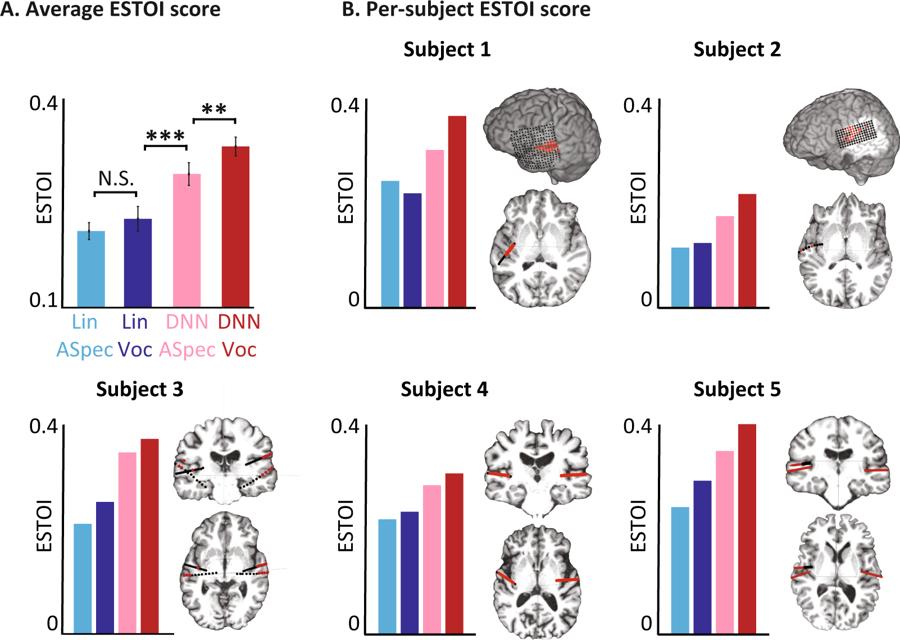 Scores objectifs d'intelligibilité des différents modèles.